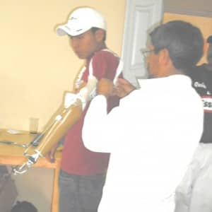 Cristobal Tasiguano from Quito adjusts an upper limb prosthesis