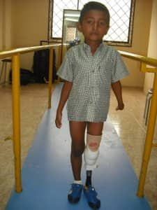 Jorge receives his first prosthesis at age 6