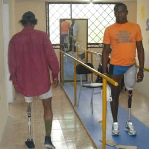 2 young men learn to walk with new above knee prostheses