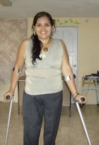 Anita with 2 prostheses