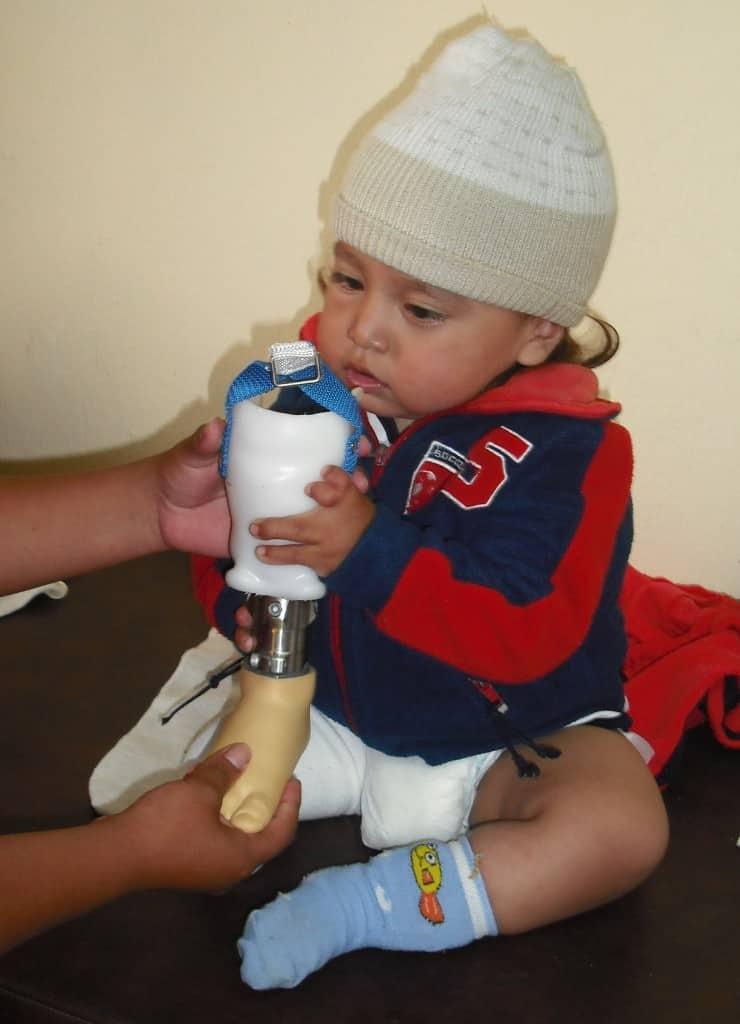 Alex, age 16 months, checks out his new prosthesis