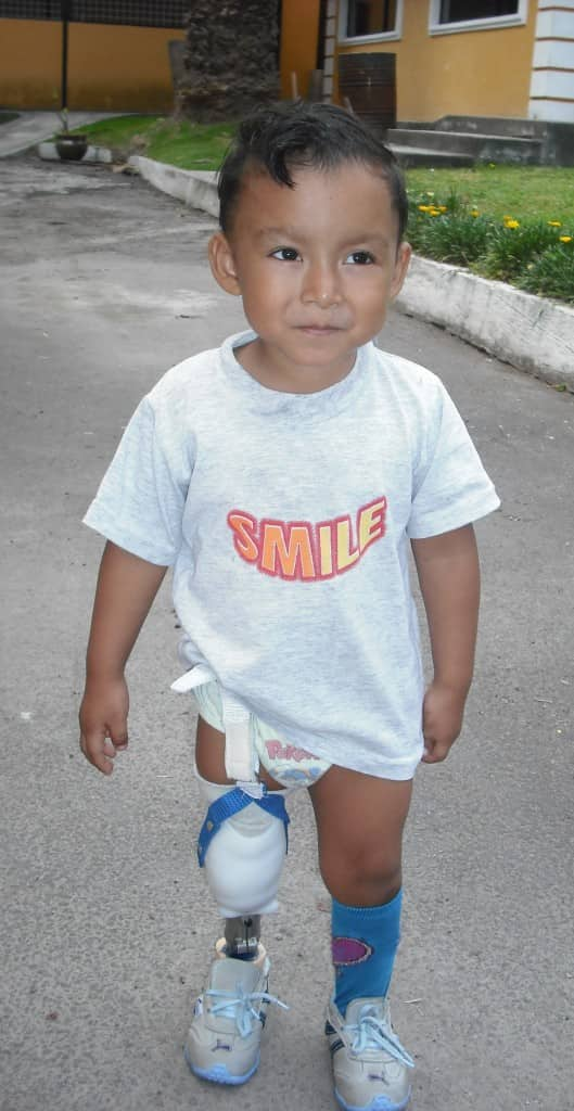 Miguel can walk, run and jump with his prosthesis that he received at age 3