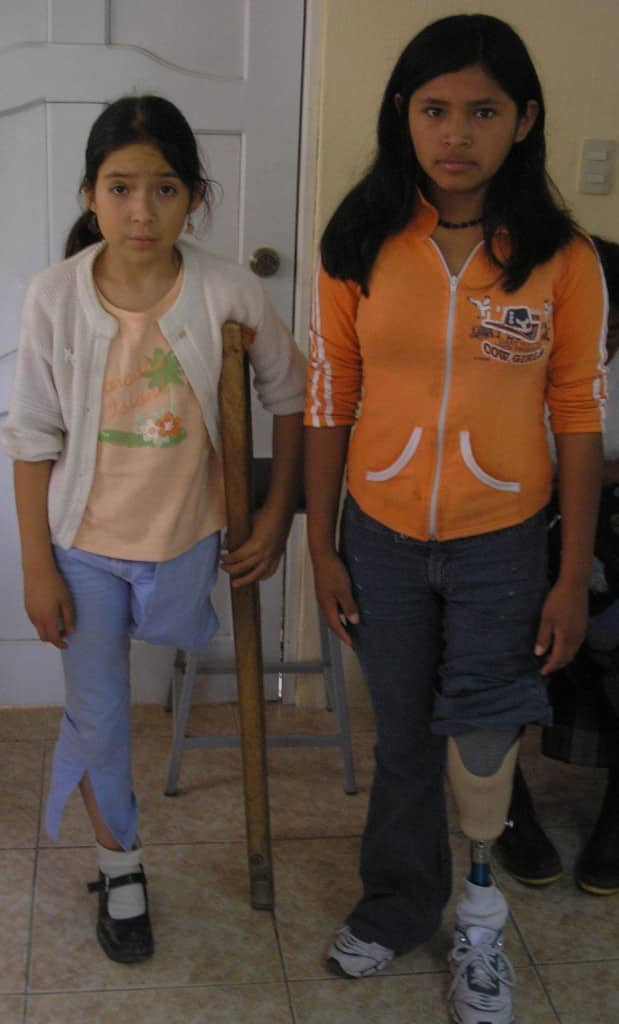 Alana is waiting for her above knee prosthesis; Jeny tries out her below knee prosthesis