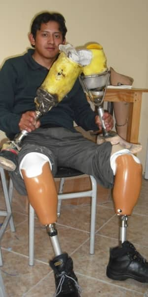 Young man holds his 10 year old prostheses that he welded together, now wearing his new prostheses